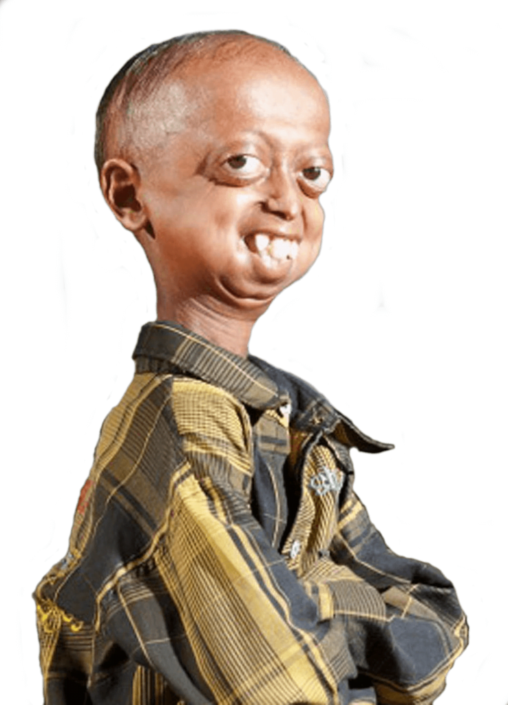 progeria natural process of aging