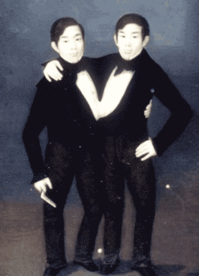 early life of conjoined twins