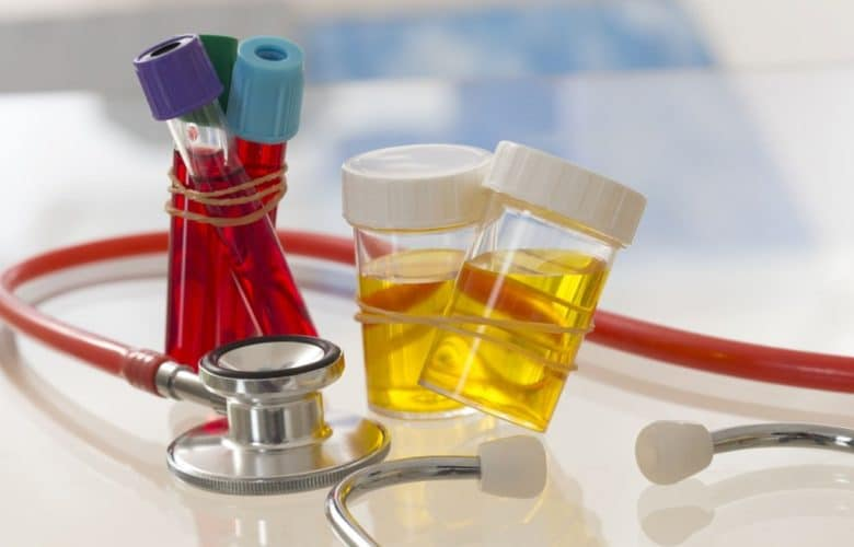 what-does-your-urine-say-about-your-health