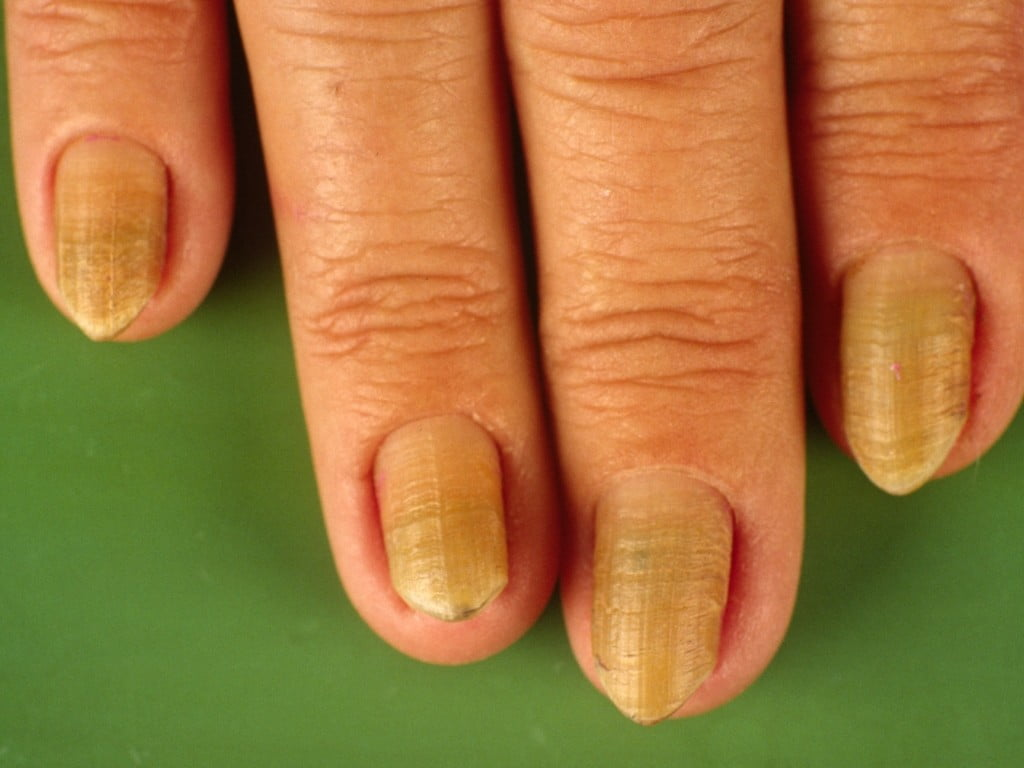 How Your Nail Can Help To Diagnose A Disease