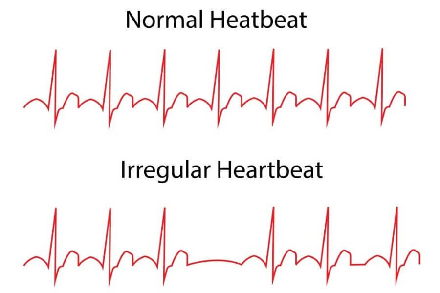Abnormal Heart Rates